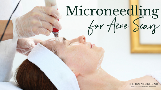 Medical Microneedling for the Treatment of Acne Scars