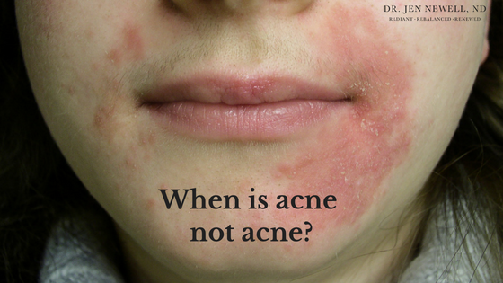 When is acne not acne? When it's perioral dermatitis…