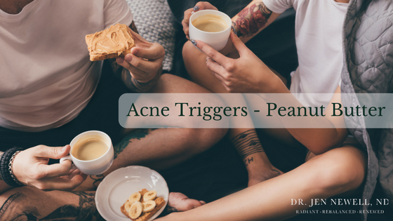 Blemish Beware: How Peanut Butter Triggers Acne