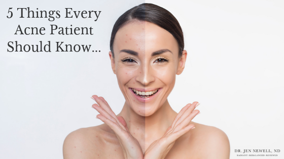 5 things every acne patient should know